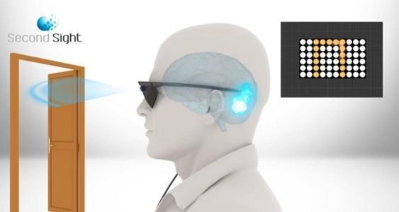 Retinal Prosthesis System Argus Ii Erc Association